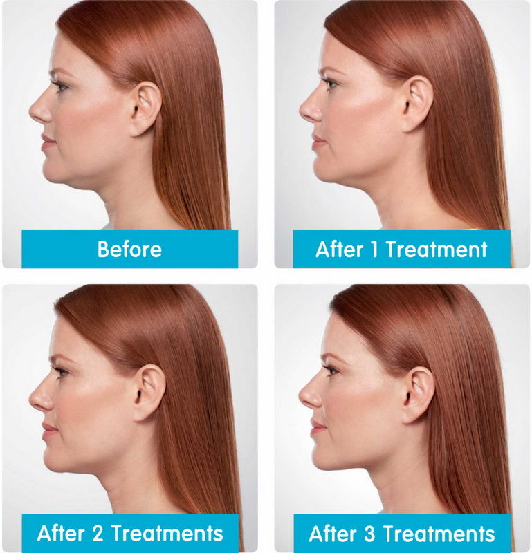 Specialist Skin & Laser Clinics | Laser & Cosmetic Clinics